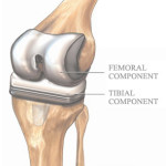 Thumbnail image for The Costs of Knee Replacement Surgery