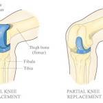 Thumbnail image for Partial Vs. Total Knee Replacement
